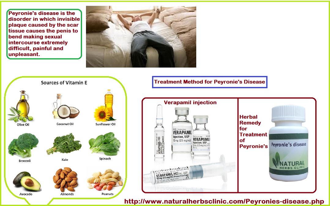 Herbal Remedies for Peyronie's Disease