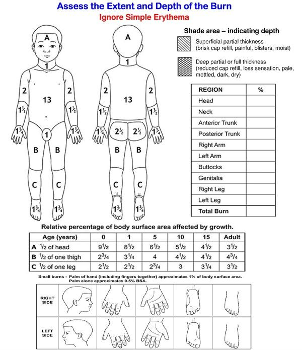 Image result for skin assessment diagram nurses pinterest image result for skin assessment diagram ccuart Image collections