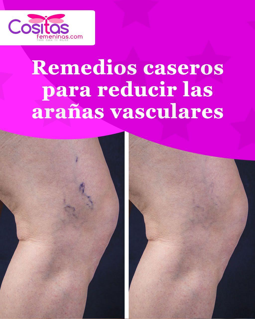 Áreas altamente vasculares
