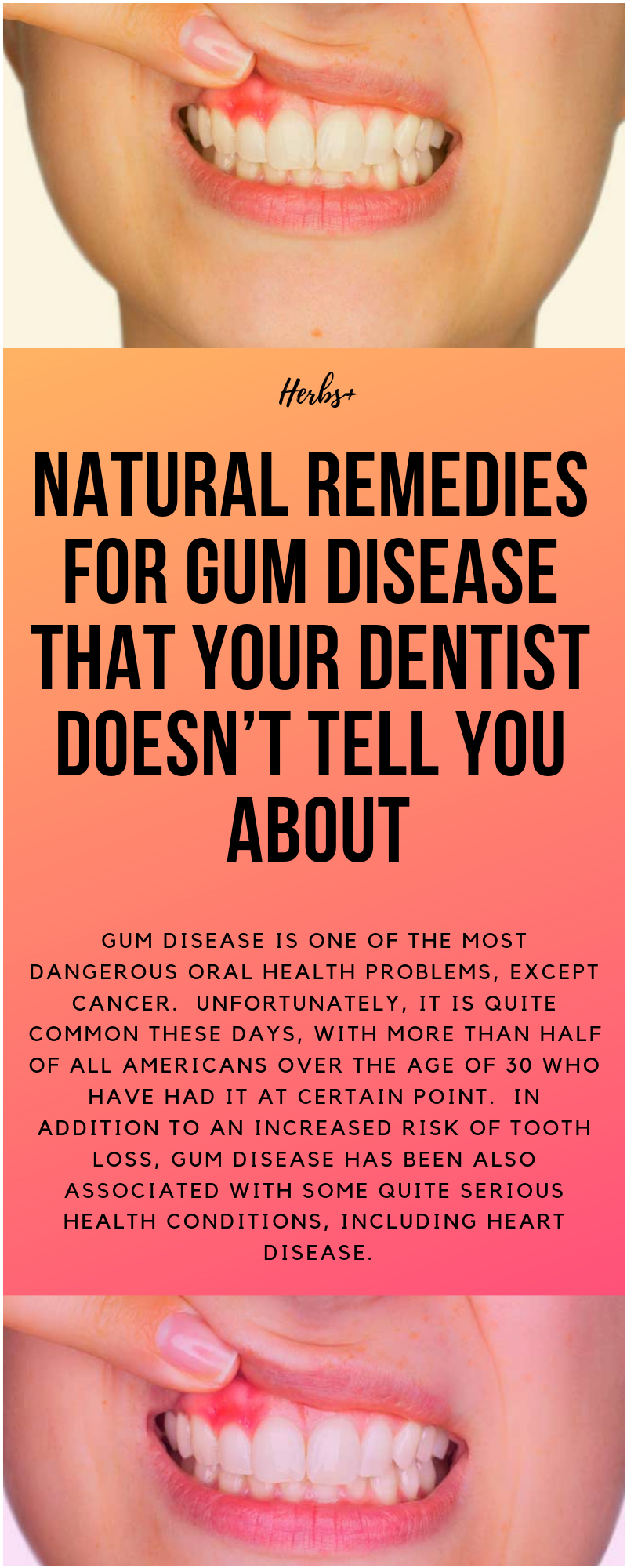 Gum disease is one of the most dangerous oral health problems, except cancer.  Unfortunately, it is quite common these days, with more than half of all Americans over the age of 30 who have had it at certain point.  In addition to an increased risk of tooth loss, gum disease has been also associated with some quite serious health conditions, including heart disease.