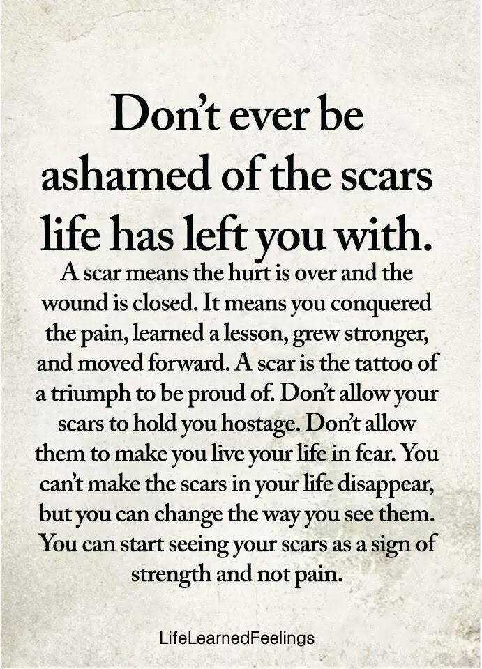 100% survival rate | See your scar as a memento describing how you made it when everyone thought you won't.