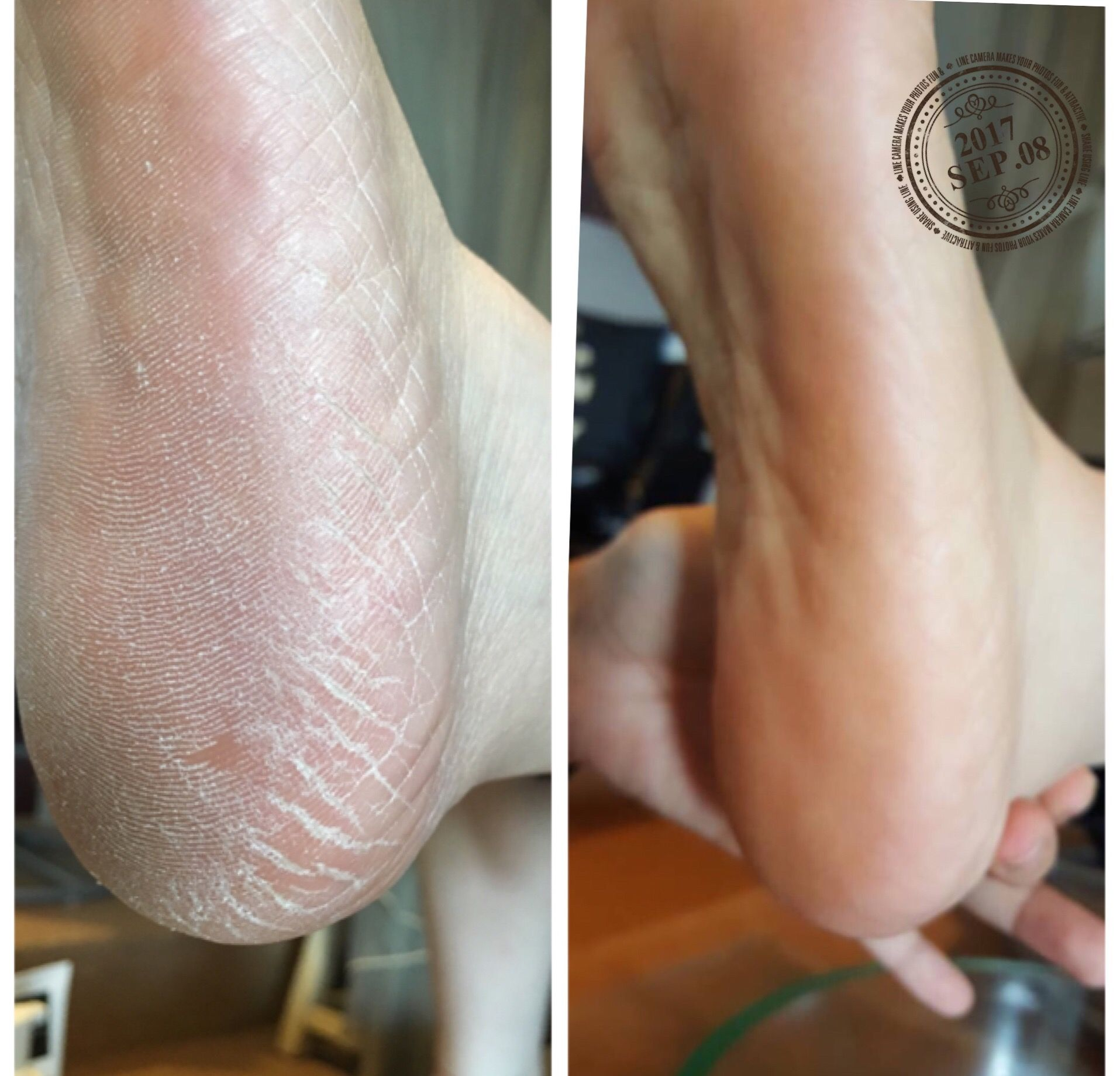 crack heel# callus remove# heel crack# dry skin# dead skin ...