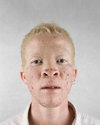 5 - Albino africans