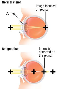 Astigmatism Astigmatism Health Guide Eye Art