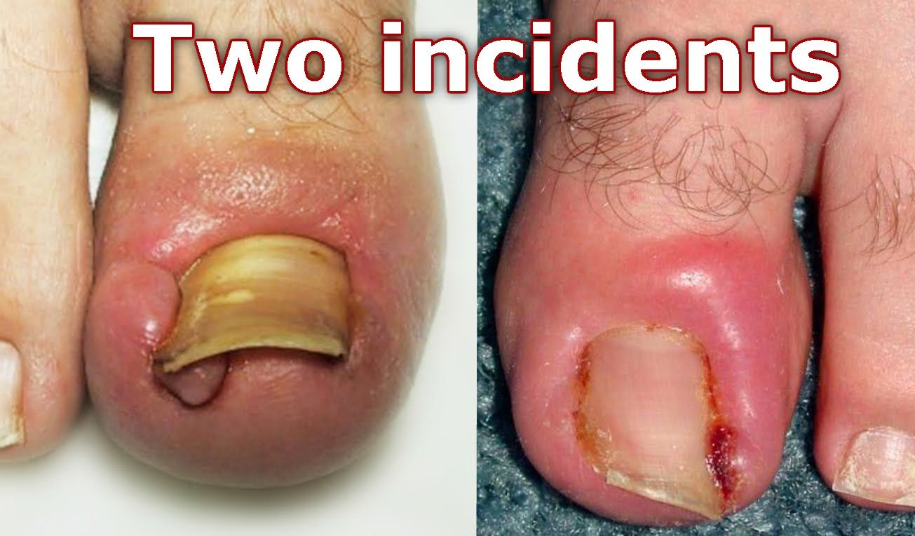 TOENAIL REMOVED {Ingrown Toenail Surgery } - All about health ...