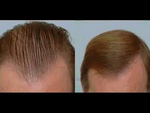 افضل طريقة لعلاج تساقط الشعر عند الرجل تعرفو على تساقط الشعر عند الرجال وطرق علاجه Youtube