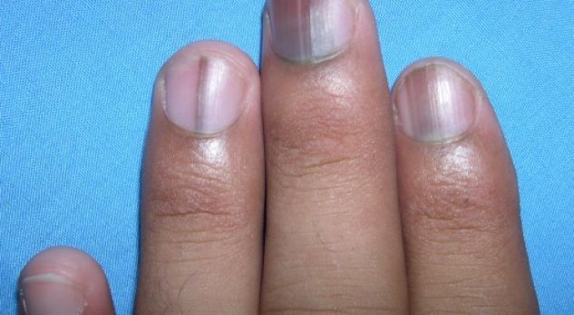 Most Of People And Almost Everyone Spends Their Days Working In The Case Of Some Women In Addition To Working Ou Lines On Nails Fingernail Health Nail Health