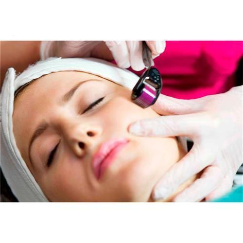 Rolo Para Microagulhamento Com 540 Agulhas Derma Erase Cosmeticos Shopfisio Microagulhamento Cicatriz De Acne Locao Firmadora