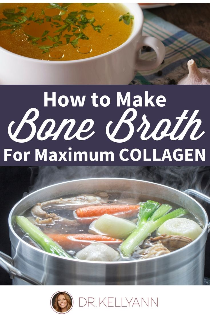 Make your bone broth recipe to get the right amount of collagen for gut health, skin, hair, and nails. #bonebrothrecipe