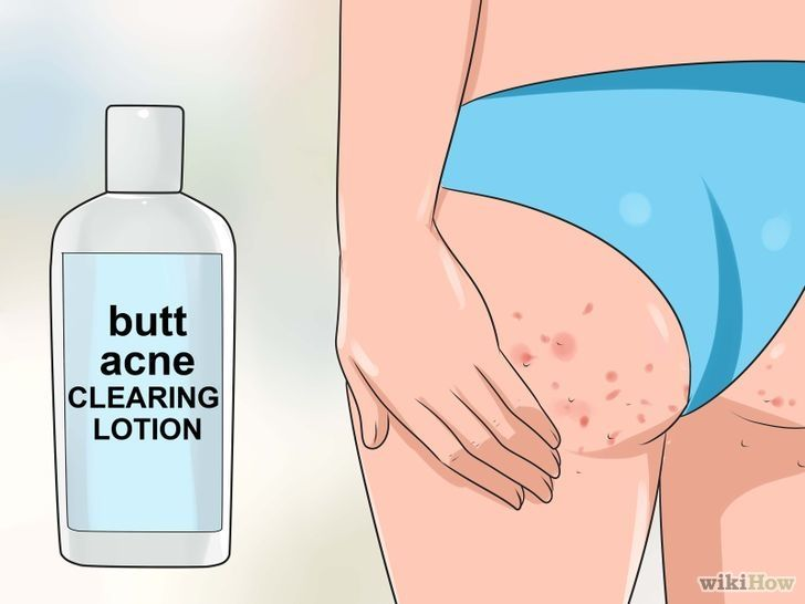 Get Rid of Acne on the Buttocks Step 1 Version 2.jpg ...