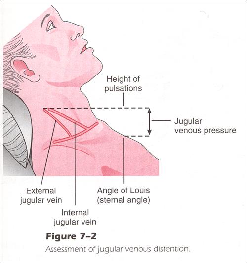 jugular vein pressure - 500×533