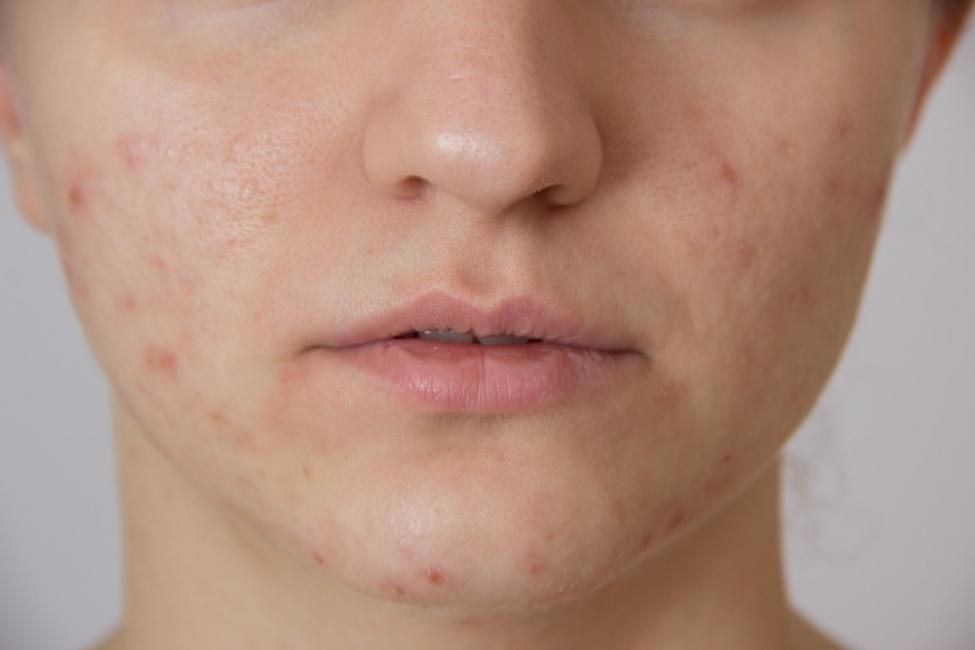 verrugas en la piel biodescodificacion