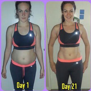 Ct weight loss surgery