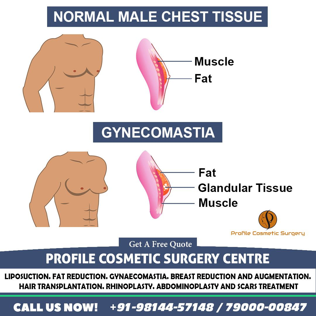 How Gynecomastia Look In Males In 2020 Cosmetic Surgery Gynecomastia Cosmetic Surgeon