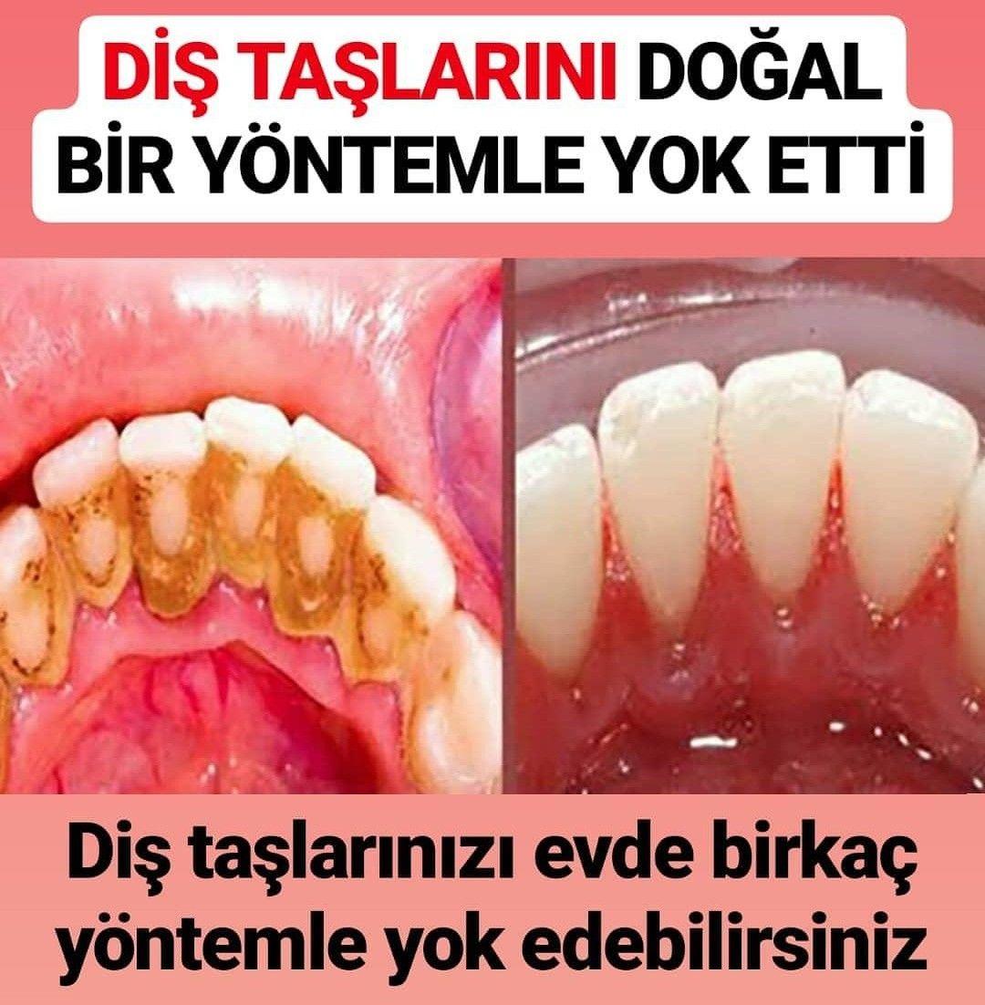 DİŞ TAŞLARINI BEMBEYAZ YAPAN TARİF | Dental, Natural medicine, Food