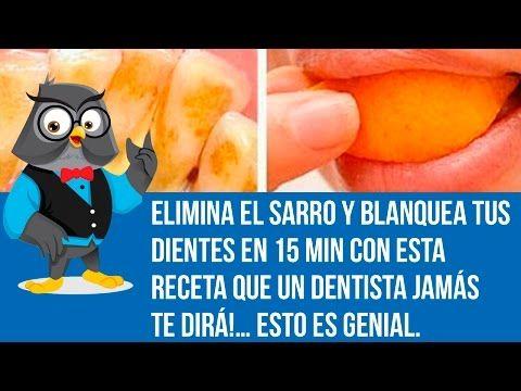 Elimina el sarro de tus dientes t mismo en casa de manera f cil youtube salud salud - Eliminar sarro en casa ...