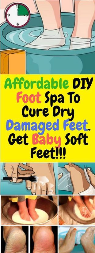 Affordable DIY Foot Spa To Cure Dry Damaged Feet. Get Baby Soft Feet!!!  #lifestyle  #fitness