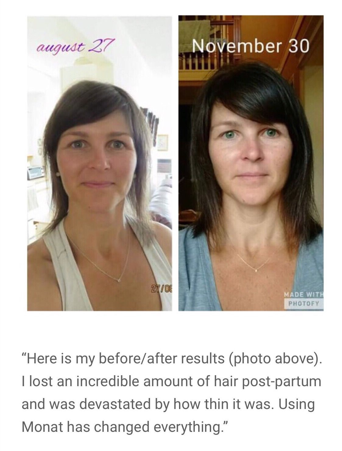 Monat helps postpartum hair loss! https//crownofglory1
