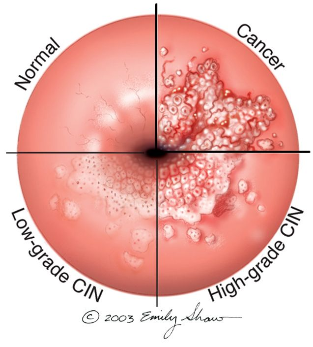 Can hpv cause bowel cancer, Colorectal cancer guidelines - Hpv virus infection treatment