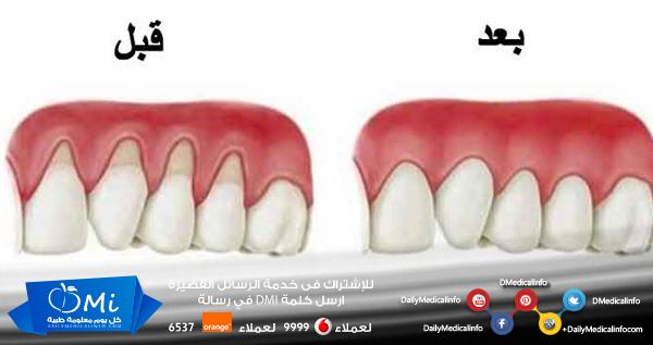 هل نظرت في المرآة ذات صباح لتجد أسنانك تبدو أطول هل لاحظت أن اللثة تبدو منخفضة عن الجزء المعتاد المفترض أن تغ Gum Health Receding Gums Gum Recession Treatment