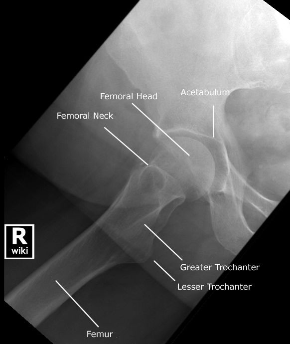 Radiographic Anatomy - Hip - Lateral Rolled | Medical ... X Ray Femur 2 Views