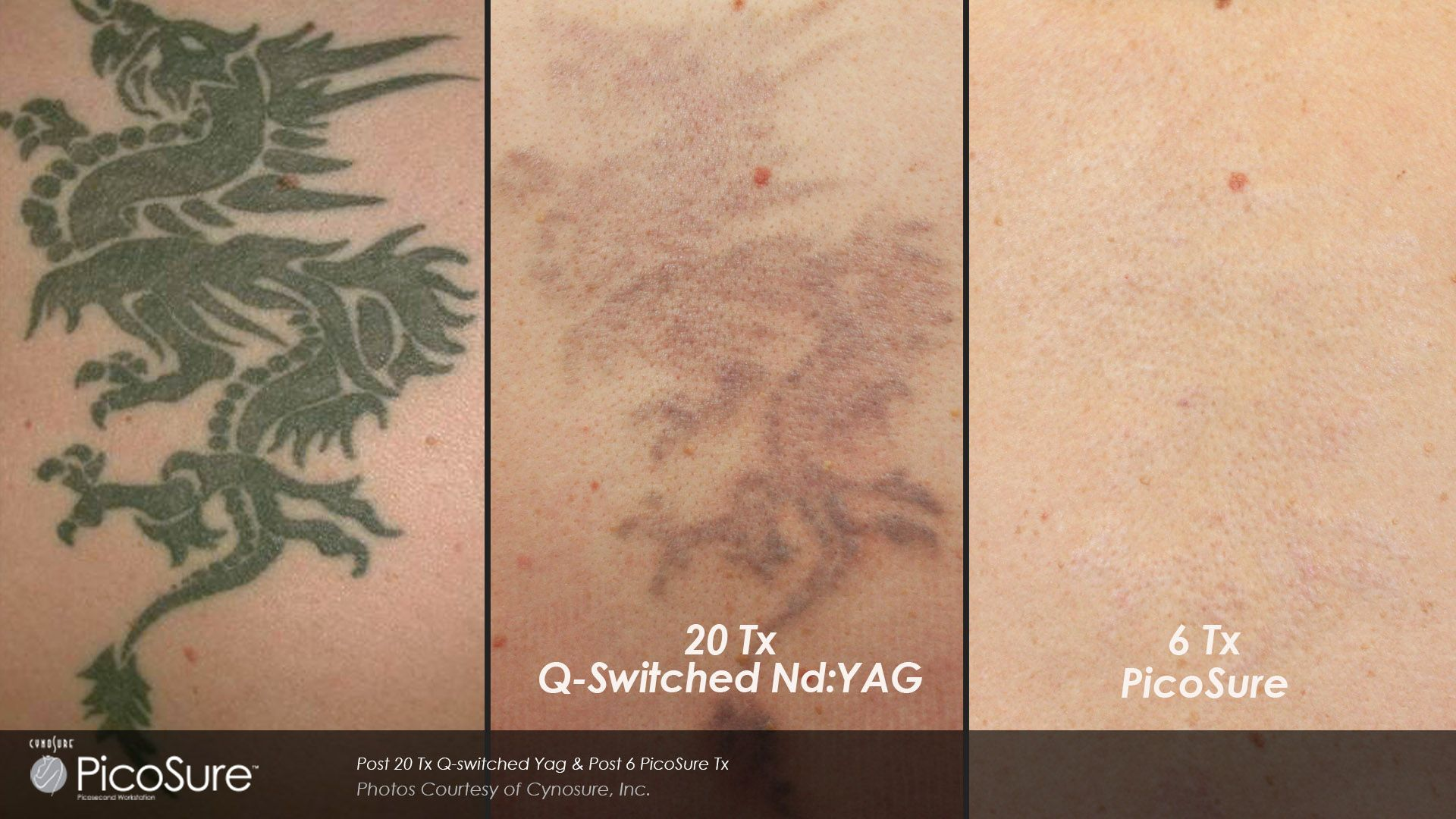 Results Of New Picosecond Laser Technology Now Used In Tattoo