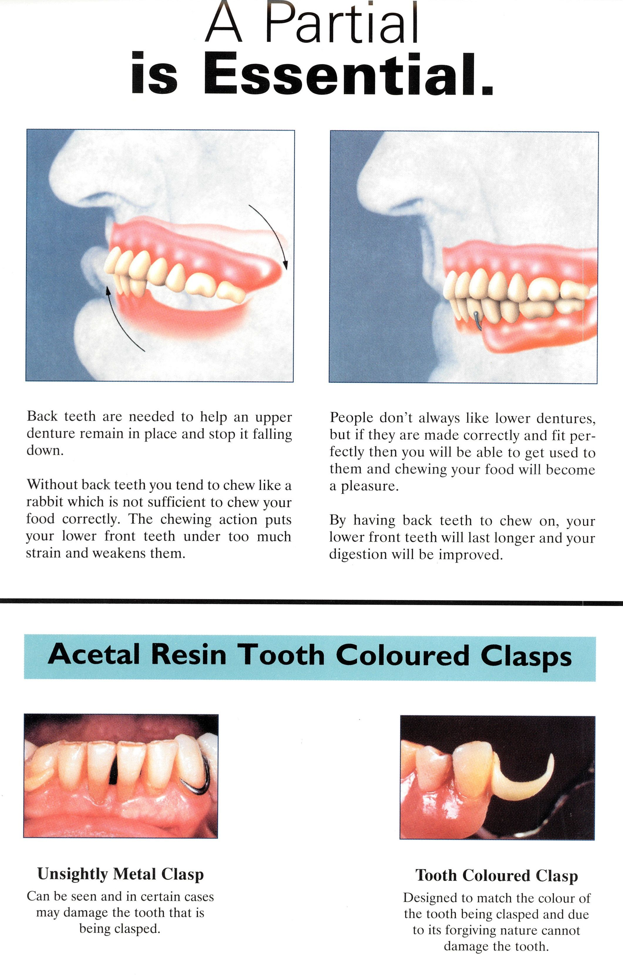 Partial denture is essential Partial dentures, Dental
