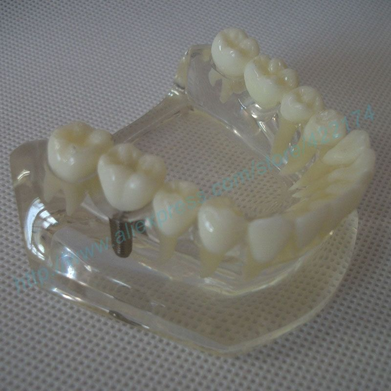 Free Shipping Implant Model With Bridge And Caries Dental Tooth