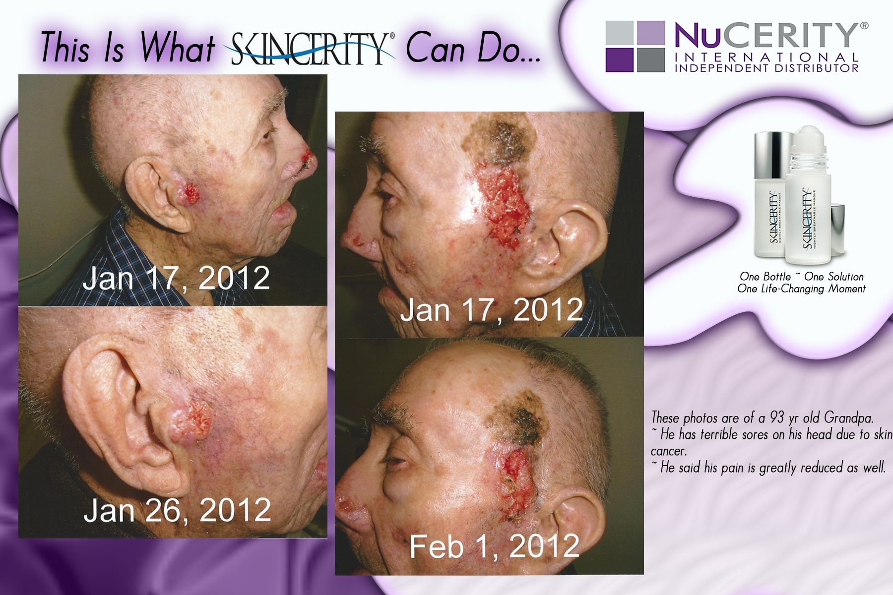 skincerity before and after - aids in healing skin cancer ...