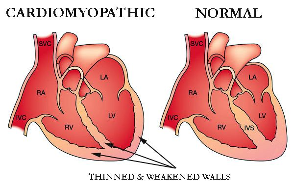 Cardiomyopathy Is A Serious Medical Condition Of The Heart In This The Heart Muscles Become Weak Heart Failure Symptoms Dilated Cardiomyopathy Medical Tests