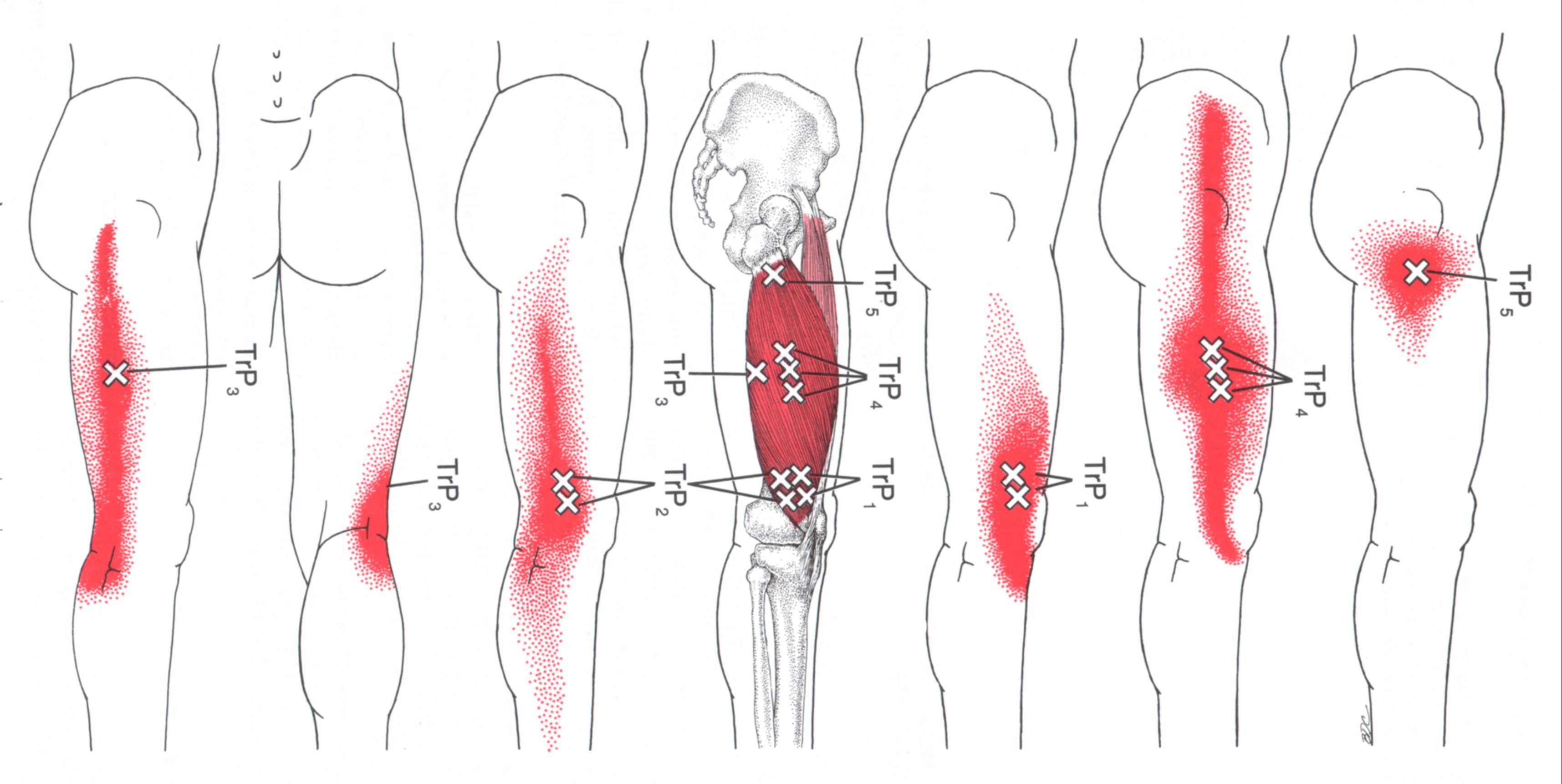 Vastus Lateralis | The Trigger Point & Referred Pain Guide … | Pinteres…