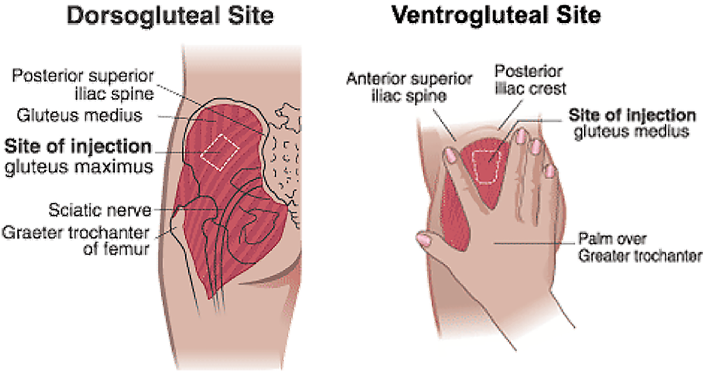 how to give gluteal injection