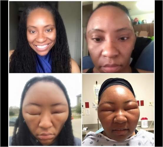 Vlogger Has Bad Allergic Reaction To Henna Containing Ppd Blind For