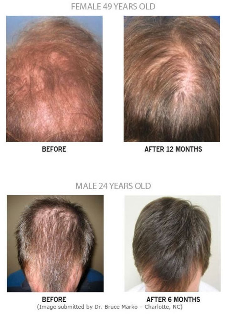 Reviews Of Hairmax And Other Por Laser Bs