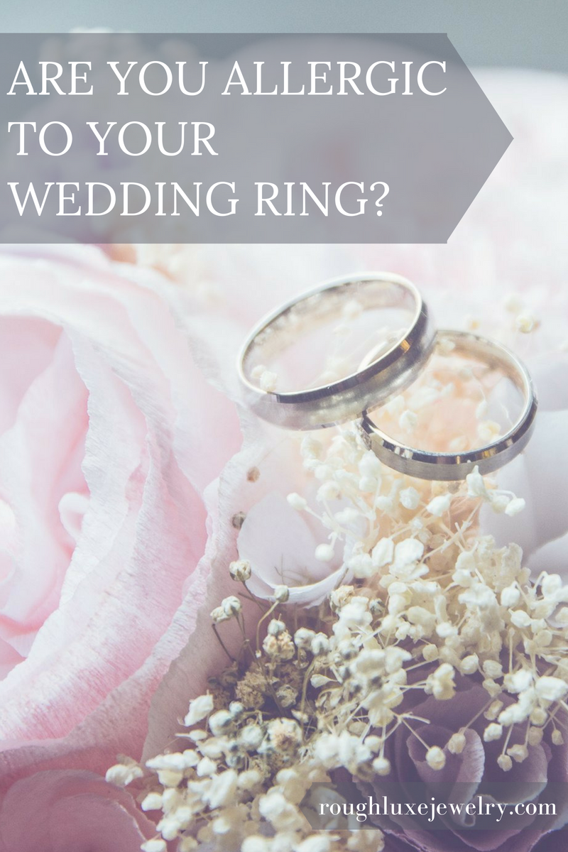 Are you allergic to your wedding ring? Wedding promises