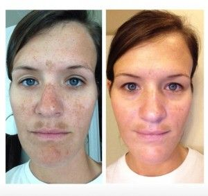 Rodan And Fields Reverse Before And After Rf Before And