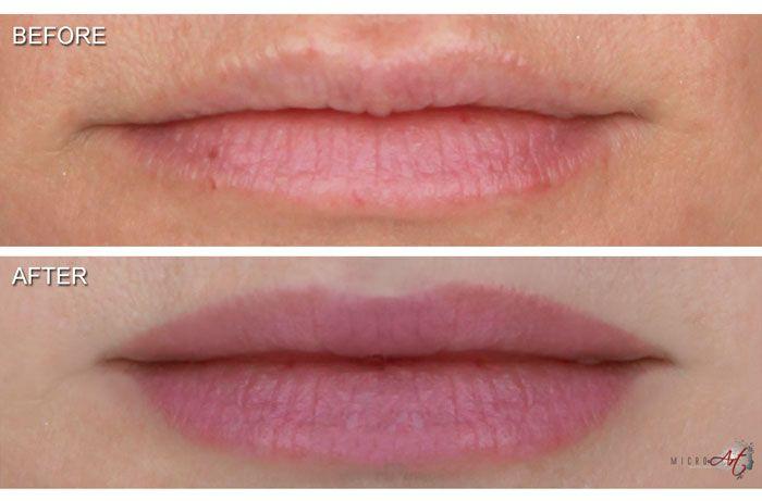 Permanent Makeup for Lips. Call Dr. White at Carolina Laser ...