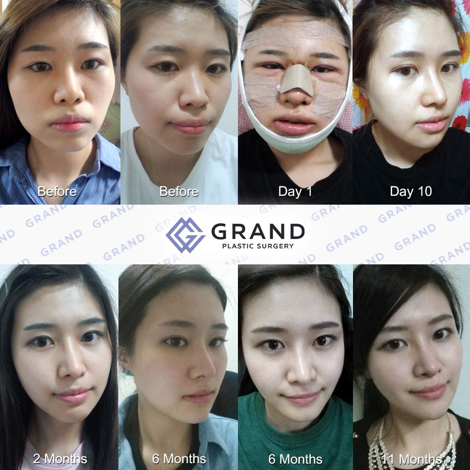 for free consultation tel: (+82) 70-7119-1580 mobile: (+82) 10-7156