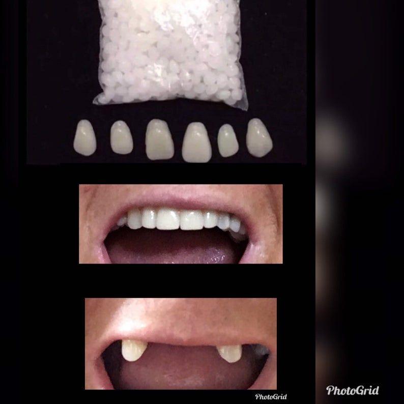 Missing Tooth Kit Front Flipper Denture Resin Denture Teeth Etsy In 2020 Veneers Teeth Teeth Dental Veneers