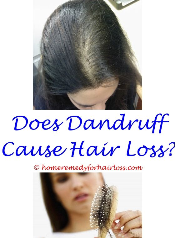 Baby Hair Loss