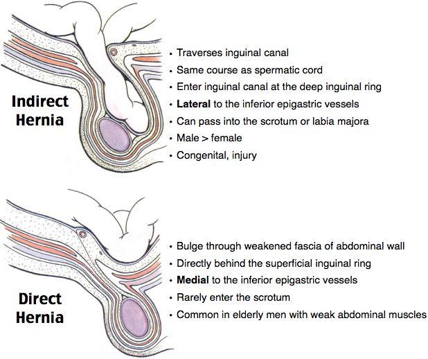 Indirect vs Direct Hernia Inguinal Hernias Bimodal: < 1 and > 40 ...