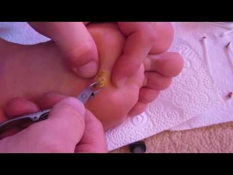 verruga plantar removida por cosmetologa. - YouTube   PODOLOGÍA ...