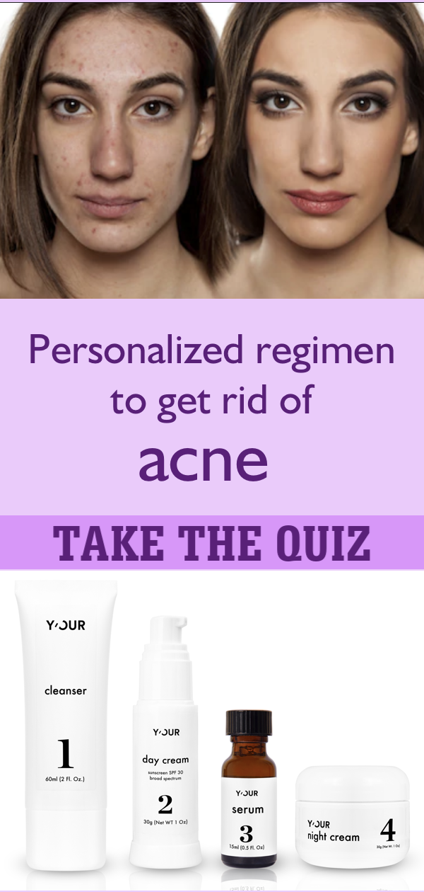 Personalized skin care routine to get rid of acne | Skin