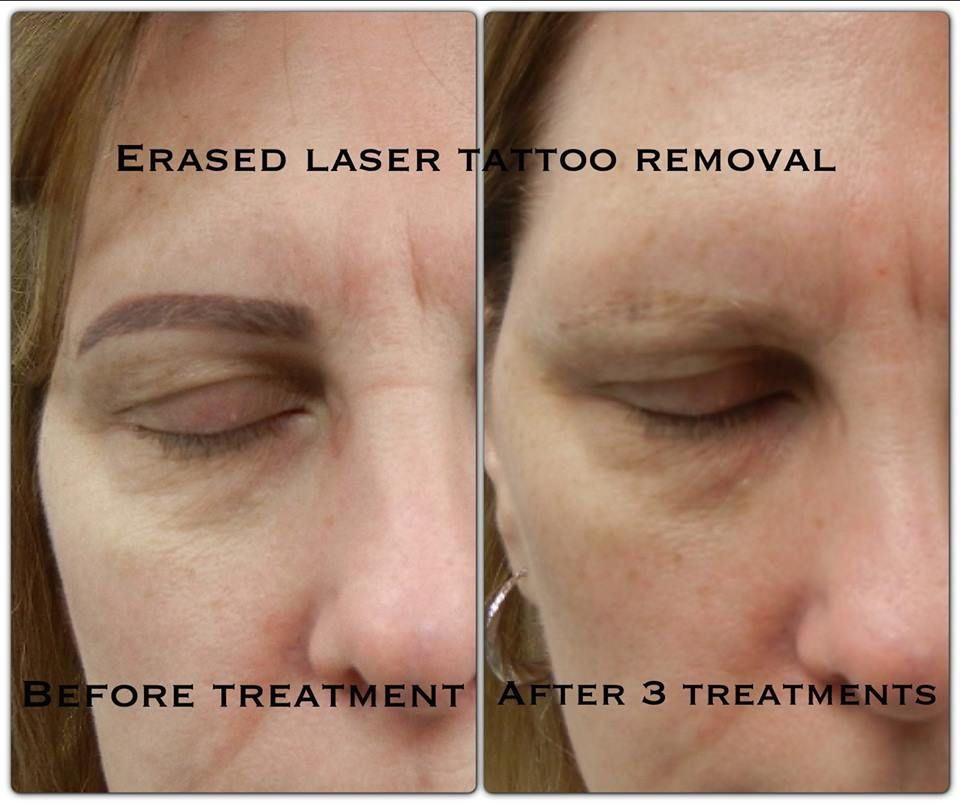 Permanent Makeup Tattoo Removal This Is A Woman That Had