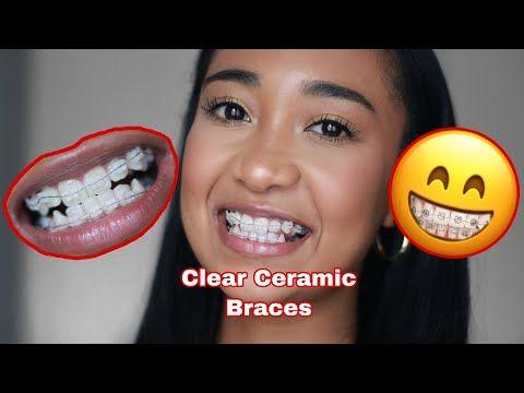 VLOG: I Got Clear Ceramic Adult Braces   South African ...