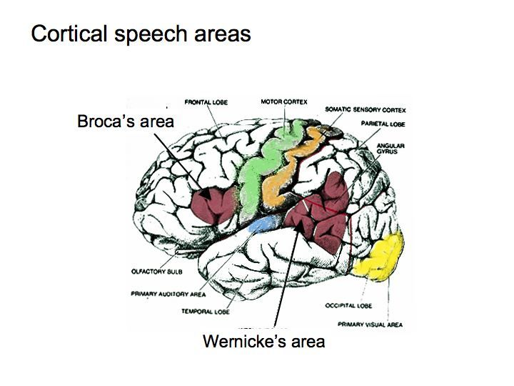 brain damage to primary auditory cortex and/or adjacent wernicke's, Human Body