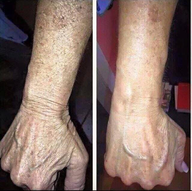 Nerium Creams can help every part of the body! Same cream you apply on your face can smooth up your hands as well.  Nothing can beat that! Order today at www.kzugaj.nerium.com