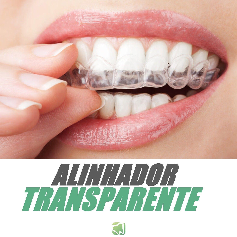 Ideia por orthoclin em ortodontia ranger os dentes