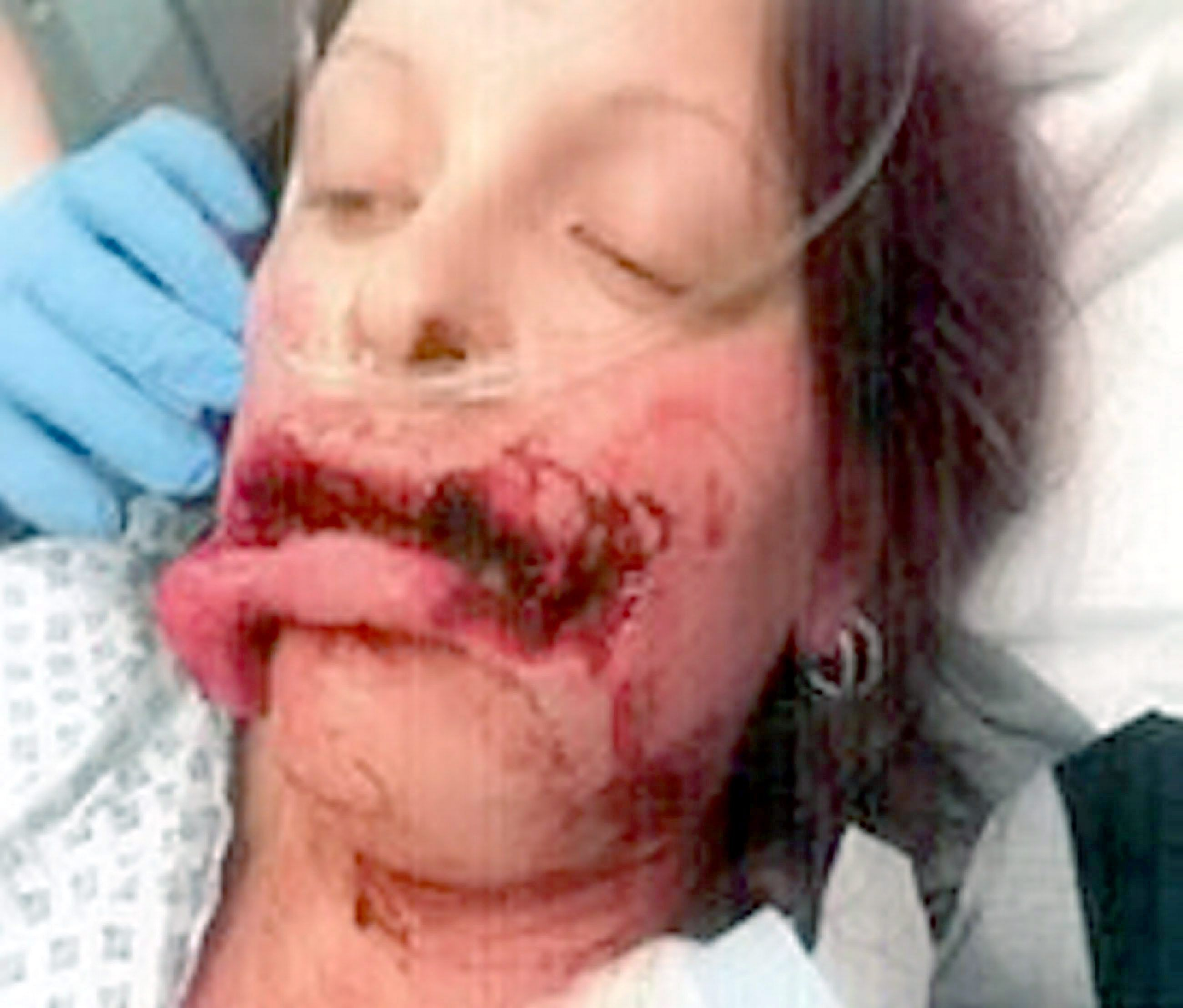 Horrific Dog Attack | Deformações em Humanos | Pinterest