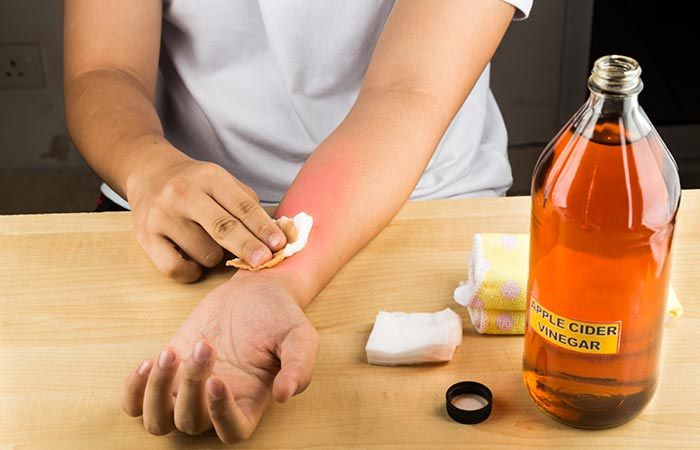 15 Best Home Remedies To Get Rid Of Ringworm's + Prevent Tips #homeremediesforringworm